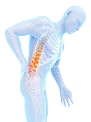 Spine Pain Illawarra Trigger Point Therapy