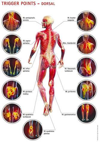 Trigger Point Graphic